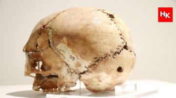 İşte 11 bin yıl önce ilk beyin ameliyatı yapılan kafatası